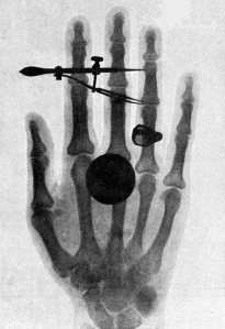 Roentgen's X-ray image of his wife, Anna's, hand. On seeing this she exclaimed 'I have seen my death'